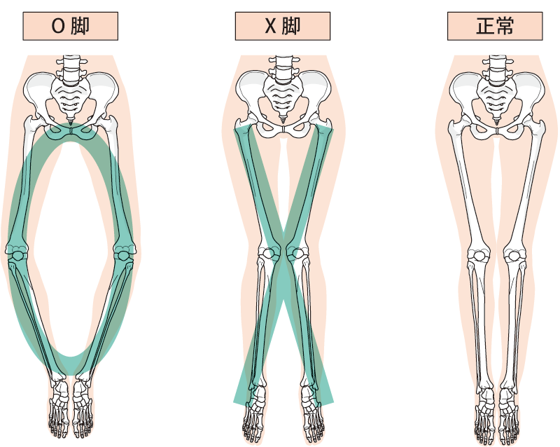 O脚・X脚矯正 | 延岡の整体なら心身ともに元気にするお手伝いをするいろどり整骨院